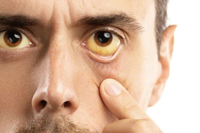 Hepatitis Banyak Tipenya, Apa Bedanya?