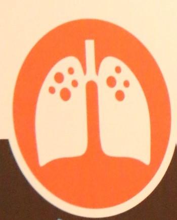 Eliminasi Tuberkulosis 2030? Kita pasti bisa